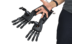 YouBionic's prosthetic hands